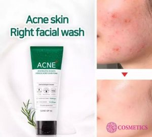 cong-dung-sua-rua-mat-some-by-mi-acne-aha-bha-pha-30-days-miracle-acne-1